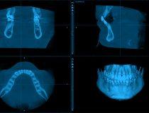tomografia cbct