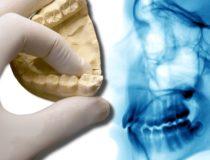 Stożkowa tomografia zębów - zalety diagnostyki 3D